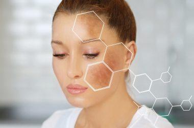 prevenir y eliminar las manchas en la piel